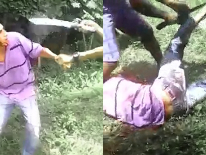 CrazyShit.com | FUCKING HELL: THEY ARE DISMEMBERING PEOPLE IN VENEZUELA NOW